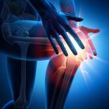 Bereits ein leichter Mangel an VitaminK kann das Risiko von Knorpelschäden erhöhen.